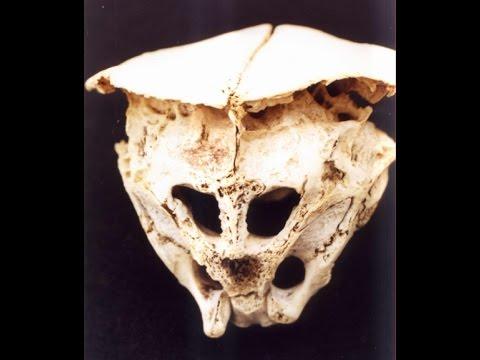 craniu Rodopi