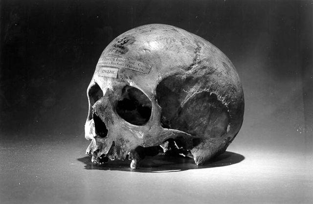 skull_of_alexander_pearce